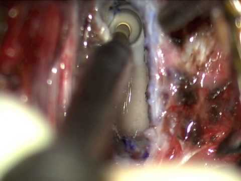 Behandlung von Kreuzbandriss des Knies ohne Operation