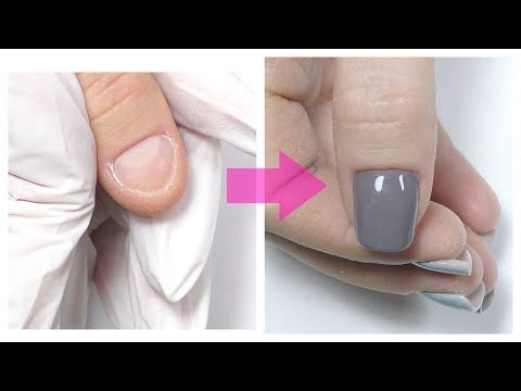Short Bitten Nails Transformation