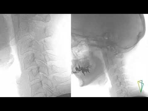 Cuscino ortopedico sotto linstabilità della colonna vertebrale cervicale