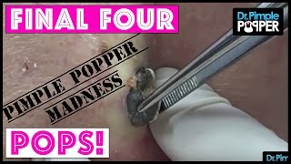 Our FOUR FINAL POPS for you - PIMPLE POPPER MADNESS!!