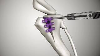 Tibial Tuberosity Advancement TTA RAPID