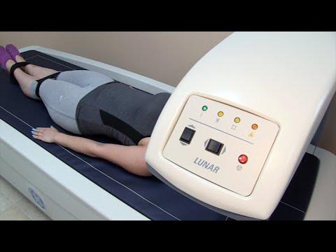 Terapia ruchowa w DOA biodrowego