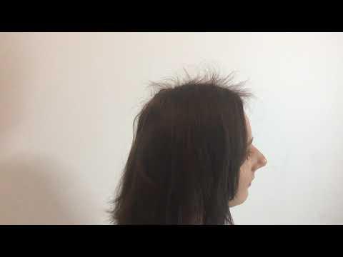 Mała utrata włosów