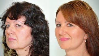Facelift, necklift, eyelid adjustment - Alena