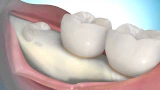 Removing Impacted Wisdom Teeth