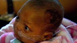 One of the world's smallest surviving babies goes home