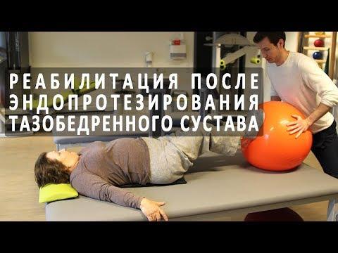 Боли в спине после ишемического инсульта
