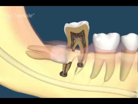 Осложнения третьих моляров (зубов мудрости)