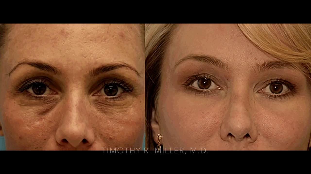 Eyelid Surgery Orange County