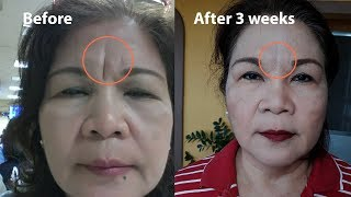 DEEP FROWN LINE TREATMENT