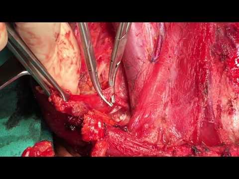 Рентген предстательной железы