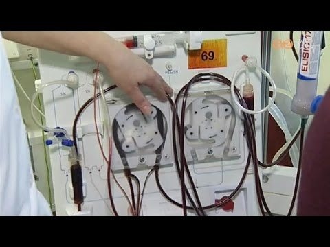 Portális hipertenzió 1 fokig