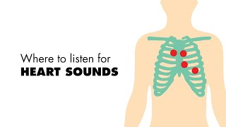 Where to listen for Heart Sounds (Auscultory Areas) - MEDZCOOL