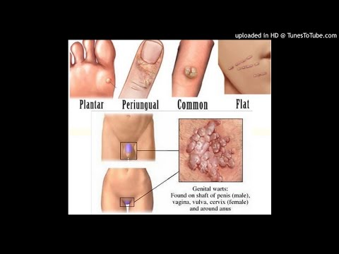 Gastric cancer overview