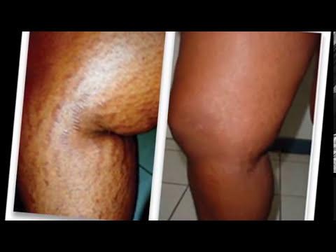 Come calmare dolori di gamba a varicosity