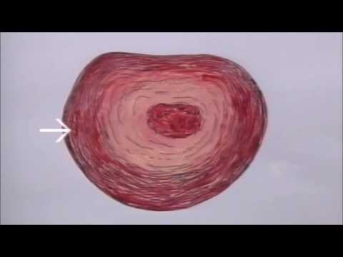 Verursacht Muskelkater im Rücken