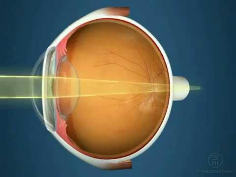 Улучшить зрение подростку