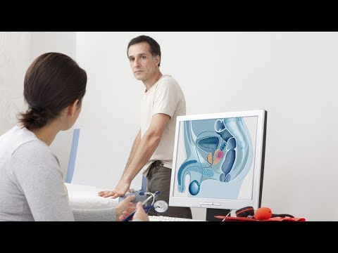 Complicazioni durante la radioterapia della prostata