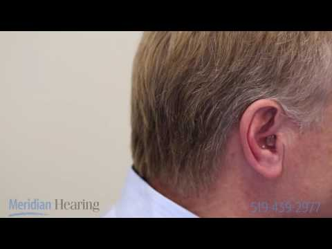 How To Put in a Completely In the Canal (CIC) Hearing Aid