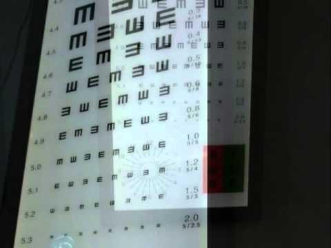 Физические комплексы для коррекции зрения