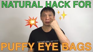 How to get rid of puffy eye bags naturally