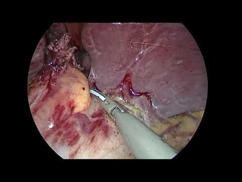 Kardiomiotomia i fundoplikacja metodą Dora z powodu achalazji przełyku