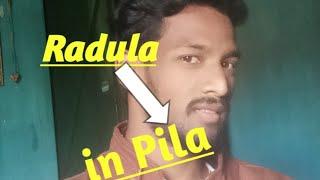 The Structure of Radula in Pila