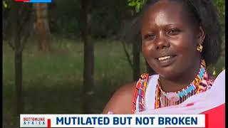 Mutilated but not broken | Bottomline Africa