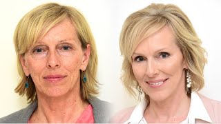 Fillings, botox and 4D laser