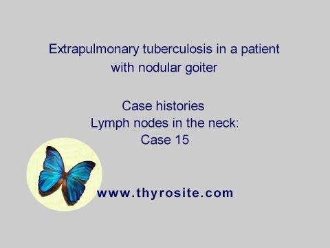 Infiammazione asettica di midollo di un trattamento di spina dorsale