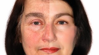 Rosacea On Face ? Cure Rosacea On Face Naturally