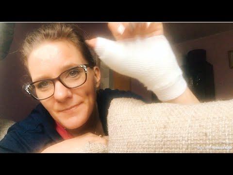 Die Behandlung der Entstellung der Finger der Beine von den Volksmitteln