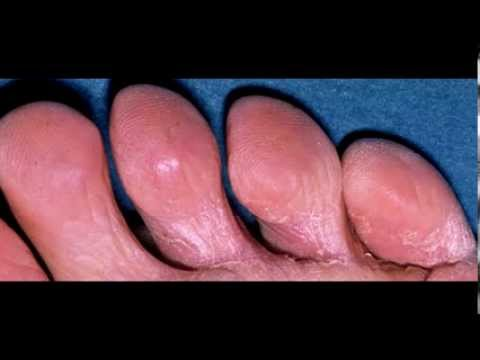 Comprare la medicina per un fungo di unghie
