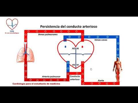 La ayuda médica para la hipertensión Estándar