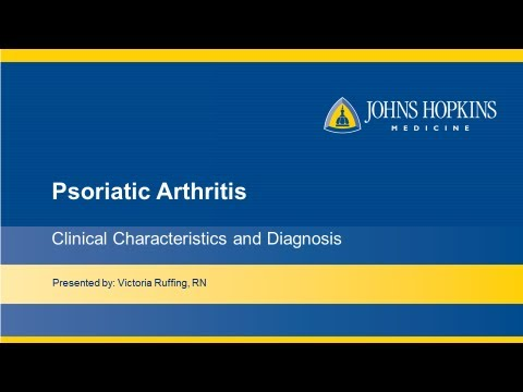 Posttraumatische Arthrose des Sprunggelenks des ICD