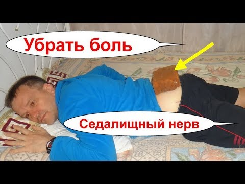 Лечение шейного остеохондроз шейного отдела позвоночника