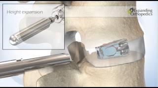 Expanding Orthopedics FLXfit 3D Expandable Cage