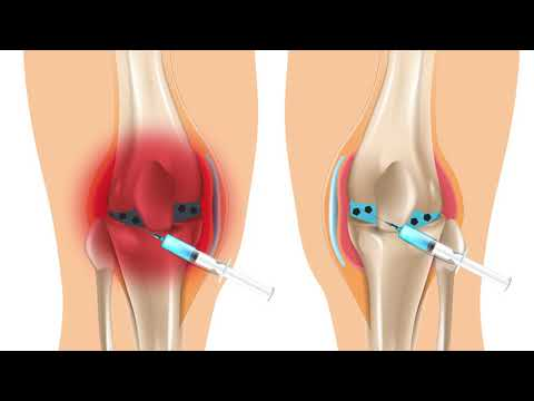 Fizikai gyakorlatok a csípőízület artrózisához