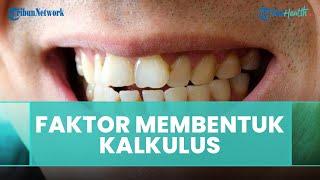 Faktor-faktor yang Dapat Mempengaruhi Pembentukan Kalkulus atau Karanfg Gigi, Ini Penjelasan Dokter