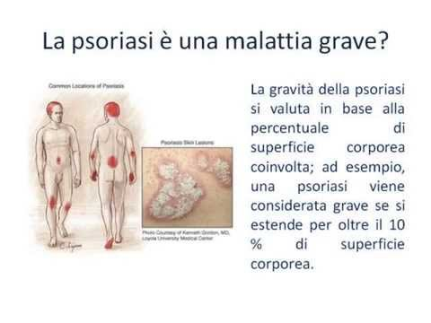Che fare con neurodermatitis