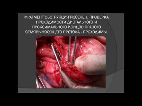 Лечение ориса простатит