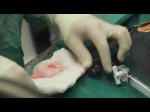 Ostacolo di vene di una tappa di un trattamento di fotografia