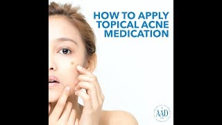 How to apply topical acne medication