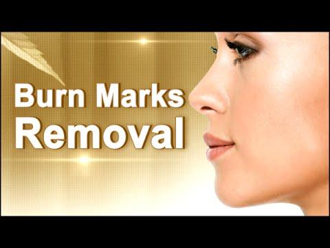 Facial massage sa halip ng Botox