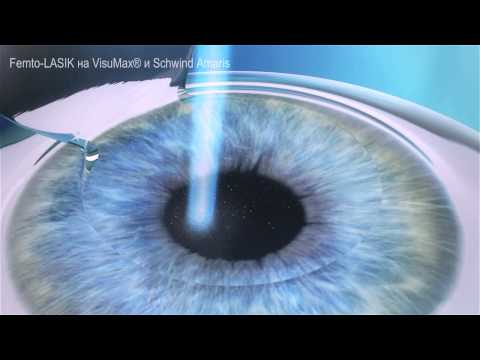 Повышенное глазное давление после замены хрусталика