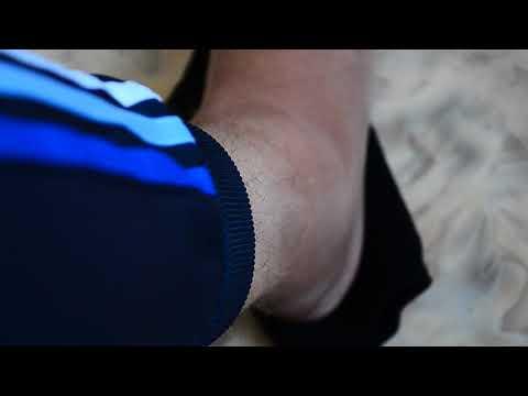 К какому обратится врачу с воспалением коленного сустава