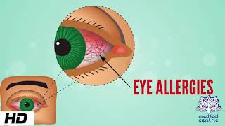 Eye Allergy, Causes, Signs and Symptoms, Diagnosis and Treatment.