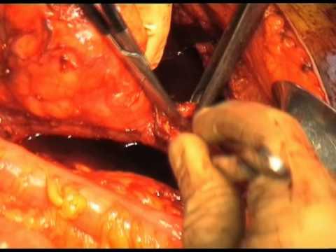 Tattica di trattamento di thrombophlebitises affilato