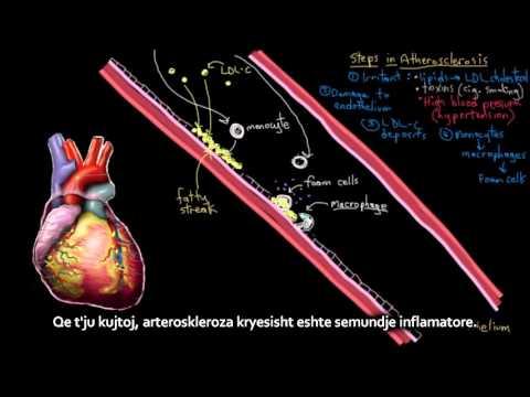 Pratimų terapija hipertenzija contra