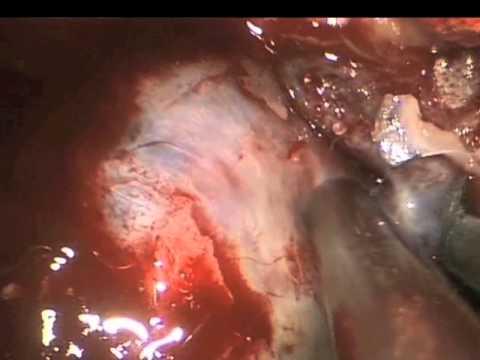 Endoskopowe Wycięcie Trzonu Kości Klinowej - Część 2